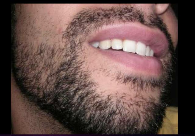 phatterism beard Ernesto Luis Santi Jr