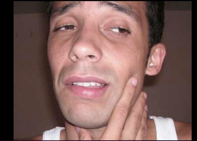 phatterism beard Ernesto